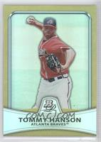 Tommy Hanson /539