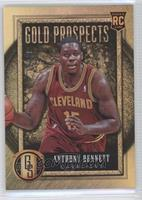 Anthony Bennett /49