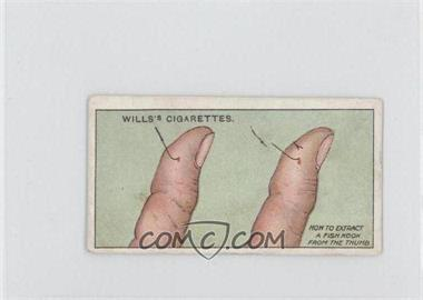 1913 Wills First Aid Tobacco [Base] #49 - To Extract Fish-Hook [Good to VG‑EX]