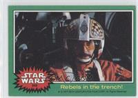Rebels in the Trench!
