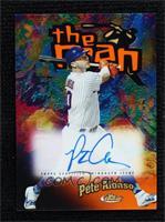 Pete Alonso #/25