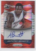 Anthony Bennett #/149
